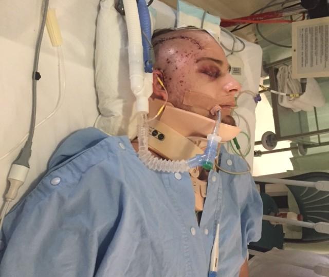I Had a Boner in a Coma